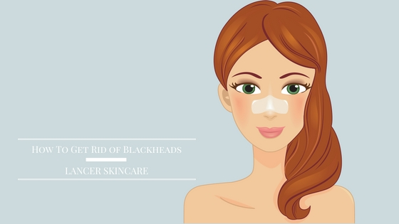 how-to-get-rid-of-blackheads-lancer-skincare